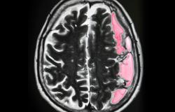 النزف تحت العنكبوتية: الأسباب والأعراض والتشخيص والعلاج
