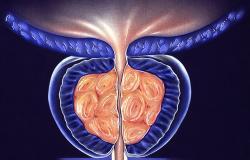 التهاب البروستات الجرثومي المزمن