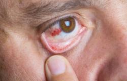 التهاب الصلبة: الأسباب والأعراض والتشخيص والعلاج