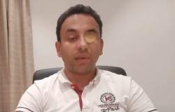 فيديو.. ليبي يشكو وزير داخلية الوفاق: فقع عيني بملعقة